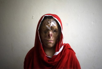 This is what they do to women in HER country